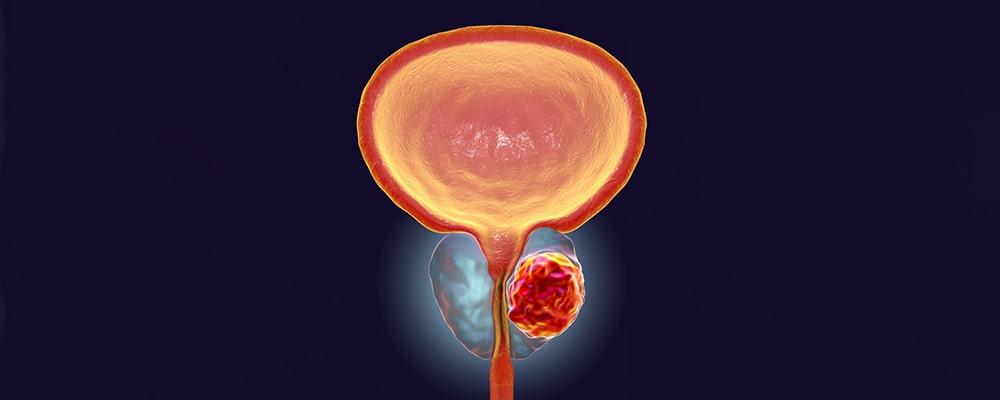 سرطان پروستات و راه های درمان آن