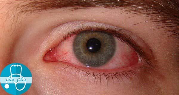 نکاتی برای کاهش خشکی چشم