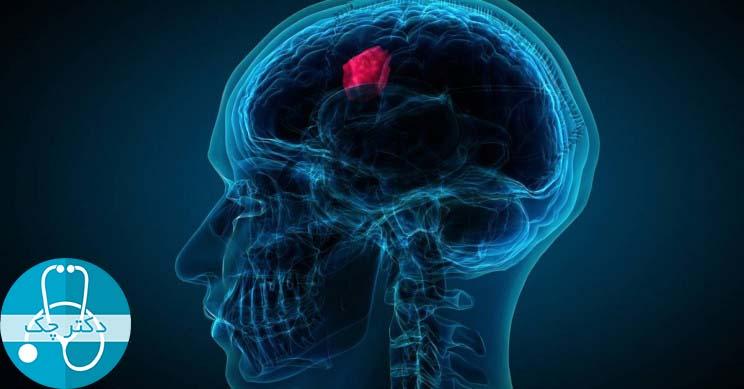 تومور مغزی چیست؟ - همه چیز هایی که باید درباره علت، علائم و درمان تومور مغزی بدانید!