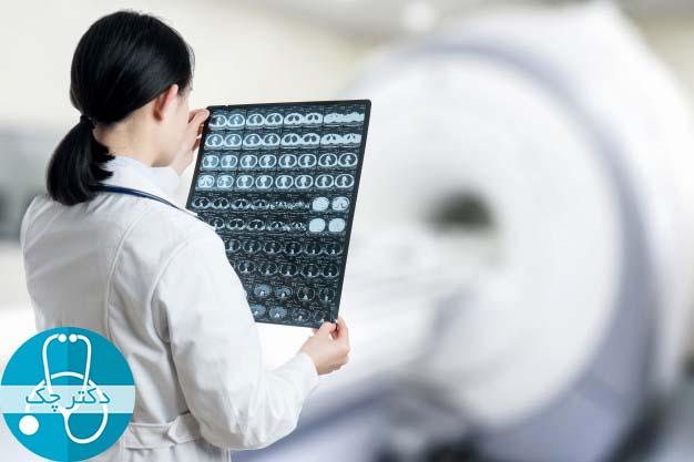 تومورهای مغزی چگونه تشخیص داده می شوند؟