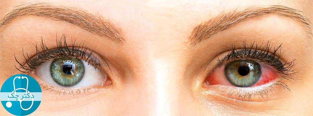 سندرم خشکی چشم - چیزهایی که باید درباره علائم، علت ها و درمان سندرم خشکی چشم بدانید!