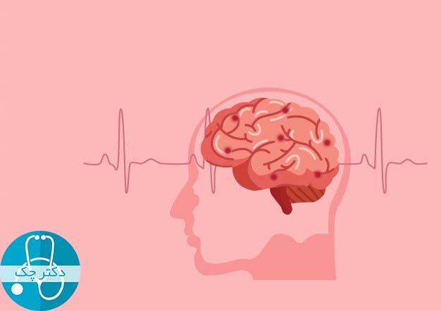 عوامل بالا برنده ریسک ابتلا به تومور مغزی چیست؟