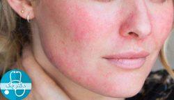 داروهای خانگی برای درمان قرمزی پوست صورت + نکاتی برای پیشگیری