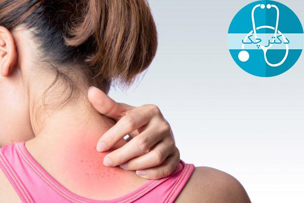 عفونت های پوستی باعث سوزش کمر می شود