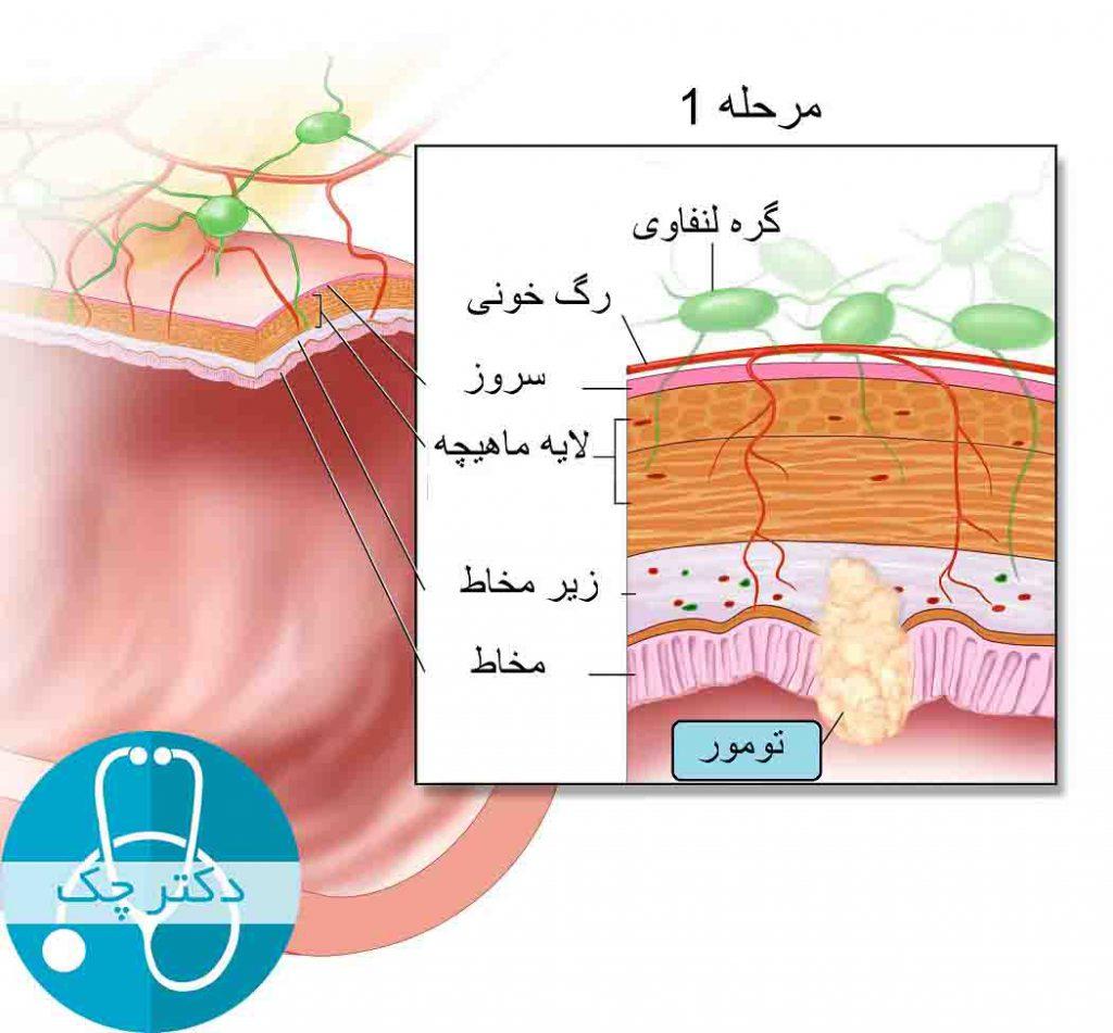 مرحله 1 سرطان روده بزرگ