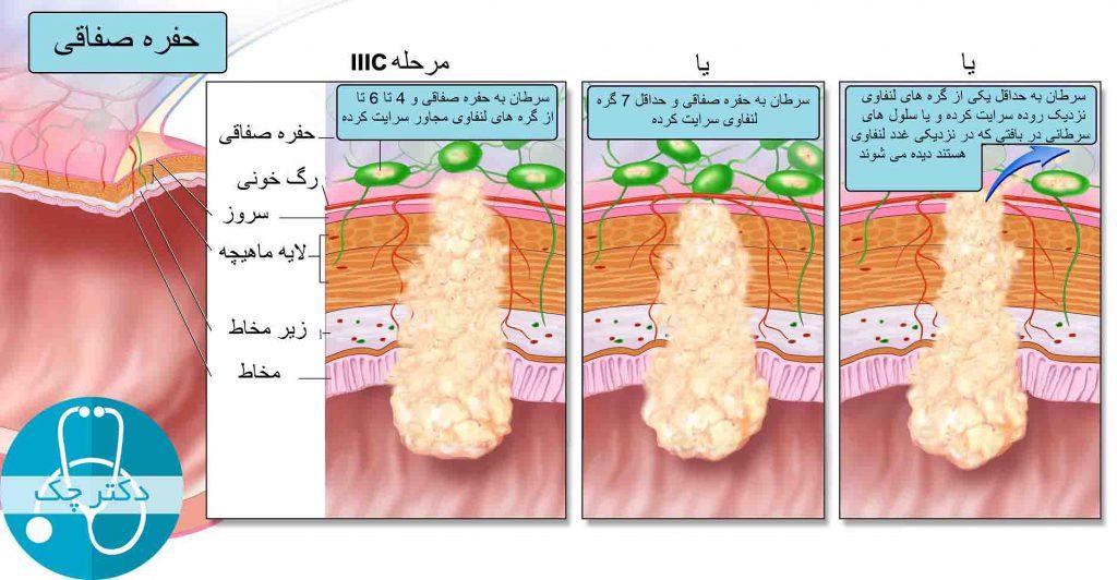 مرحله IIIC سرطان روده بزرگ