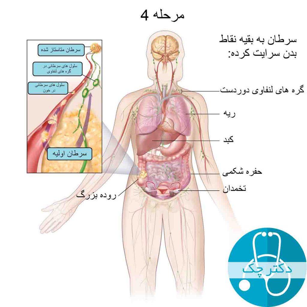 مرحله 4 سرطان روده بزرگ