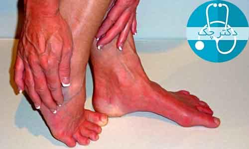 سندرم اریتروملالژیا و داغی کف پا