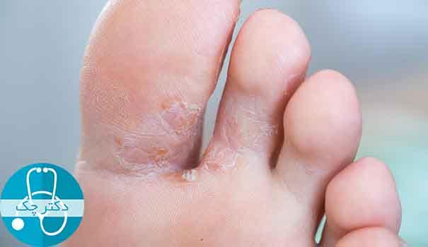ابتلا به عفونت قارچی و تاثیر آن بر داغ شدن کف پا