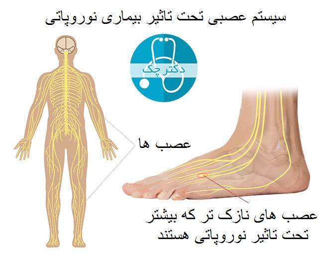 اختلالات عصبی پا