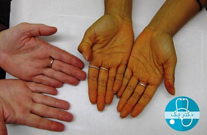 علت زرد شدن دست ها چیست