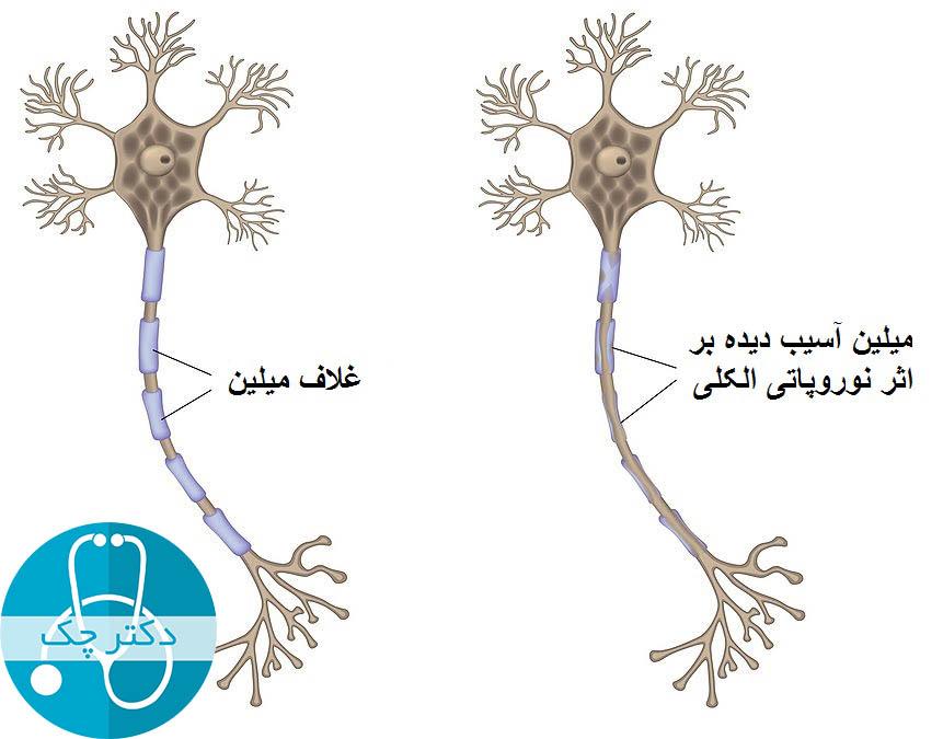 آسیب به عصب در اثر ابتلا به نوروپاتی الکلی