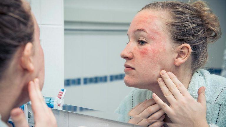 بیماری پوستی و راش پوستی