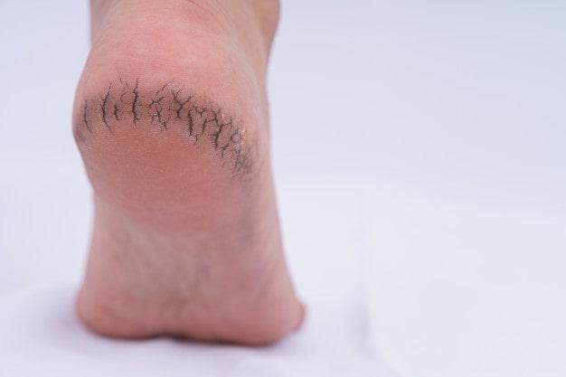 خشکی پوست کف پا