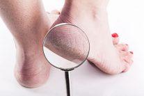 20 روش برای درمان ترک پاشنه پا